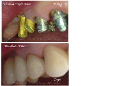 prima e dopo impianto con denti naturali