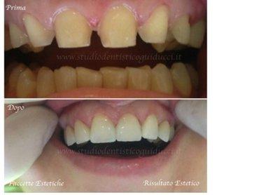 denti prima e dopo trattamento di ortodonzia