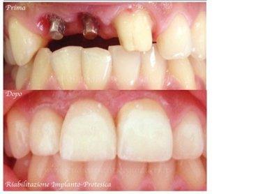 foto durante impianto e dopo impianto con denti naturali