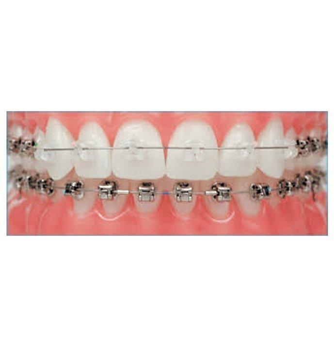 Apparecchiatura ortodontica fissa