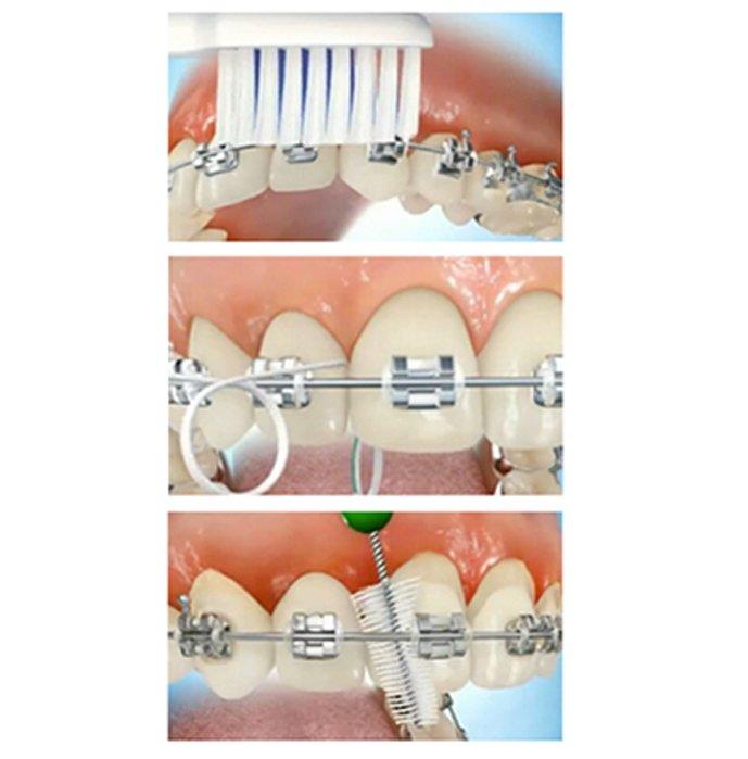 Strumenti per l'igiene orale, durante la terapia ortodontica