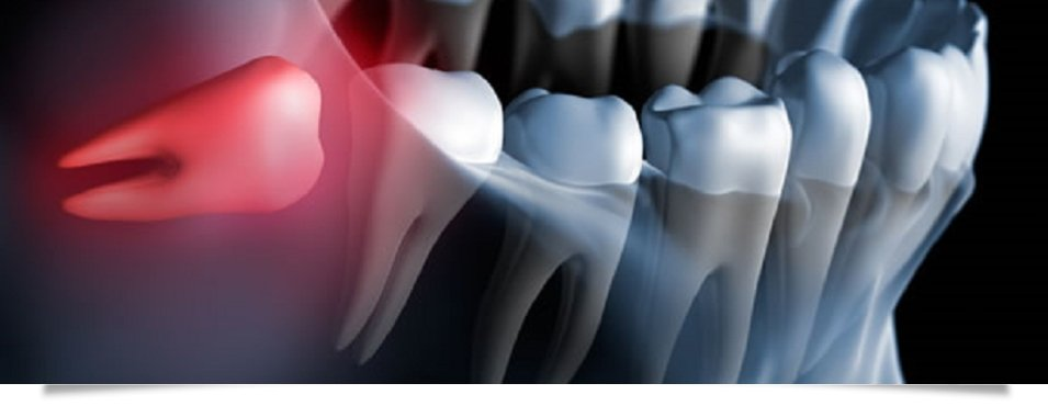 chirurgia del cavo orale