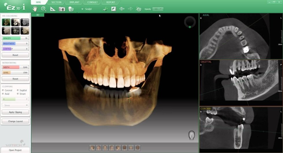 Diagnostica 3D