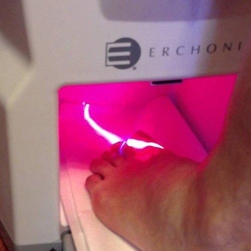 toenail analysis