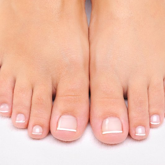 neglected feet