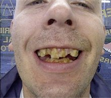 Quick denture repairs  - Heath, Cardiff - Gnashers - Teeth