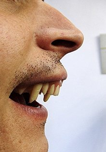 Denture repairs  - Heath, Cardiff - Gnashers - Vampire teeth