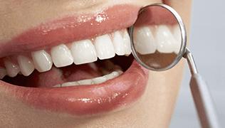 prestazioni odontotecniche specialistiche