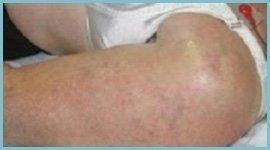 trattamento cellulite