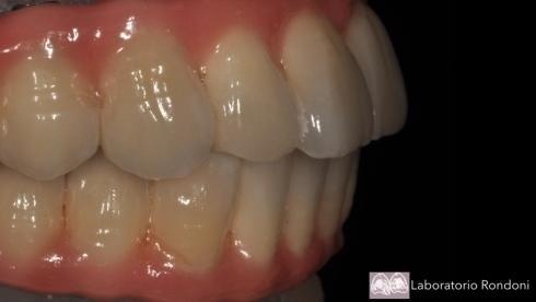 Casi dottor Martinengo dentista