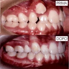 Ortodonzia nel bambino (maschio 14 anni)
