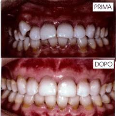Ortodonzia nell
