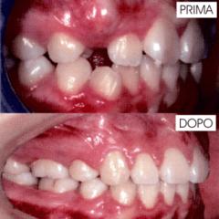 Ortodonzia nel bambino (femmina 9 anni)