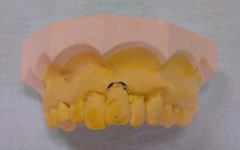 denti danneggiati impronta