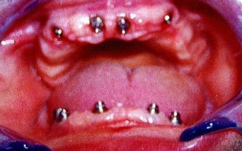 ricostruzione denti