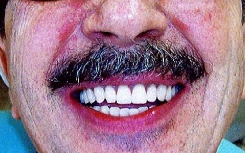 operazione denti sorriso perfetto
