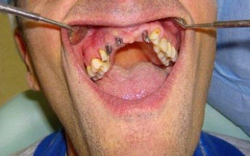ricostruzione denti impianto