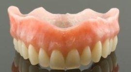 odontoiatria, odontostomatologia, dentiera