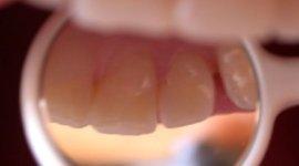 igiene dentale, protesi fissa, protesi mobile