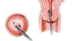ostetrica, specialista ostetricia, chirurgo ginecologico