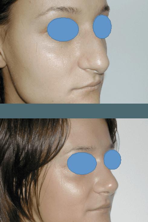 Rimodellamento del naso