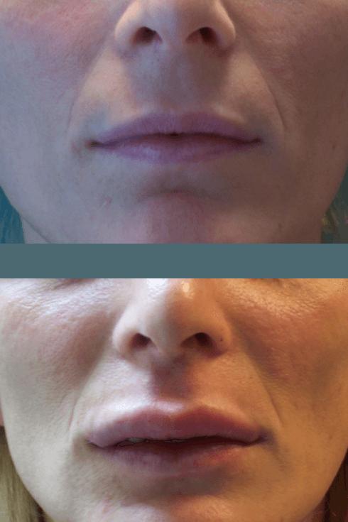 Aumento di volume delle labbra