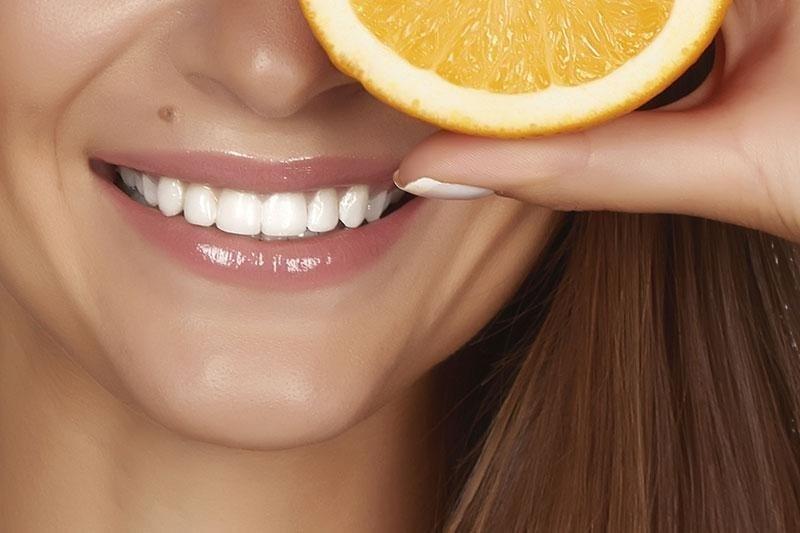 smile - denti bianchi - sorriso protetto