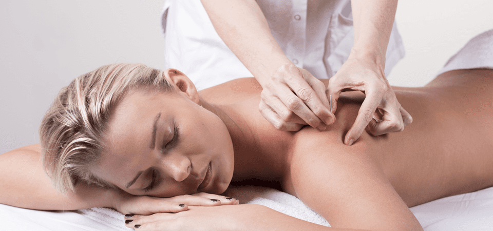 A lady having acupuncture