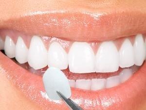 denti sani di una donna