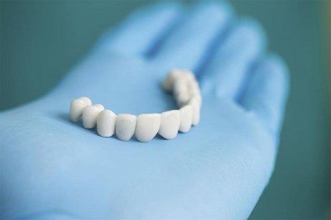 Protesi Dentaria Estetica