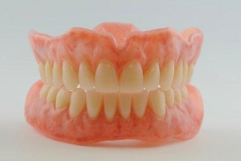 Protesi dentali su impianti