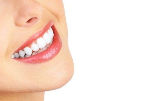 Sbiancamento dentale Empoli