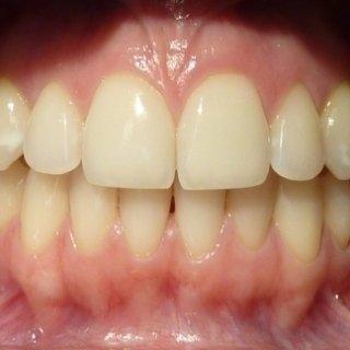 Ortodonzia, dentista per bambini a Cagliari,