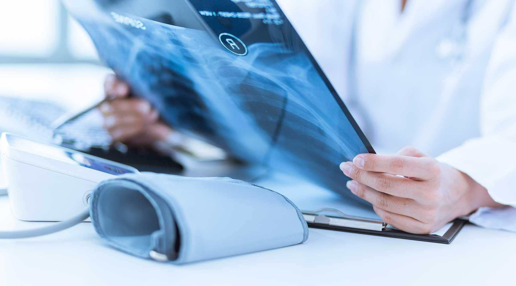 una persona con un camice bianco sta osservando una lastra di un paziente