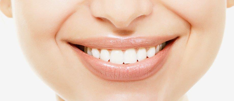 High-quality teeth whitening services by Sliabh Mór Dental