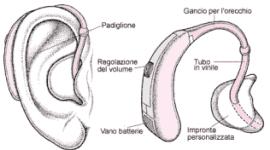 protesi acustiche personalizzate