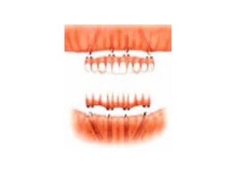implantologia Treviso