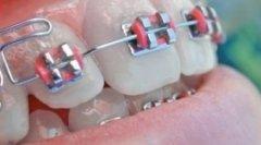 Foto apparecchio denti