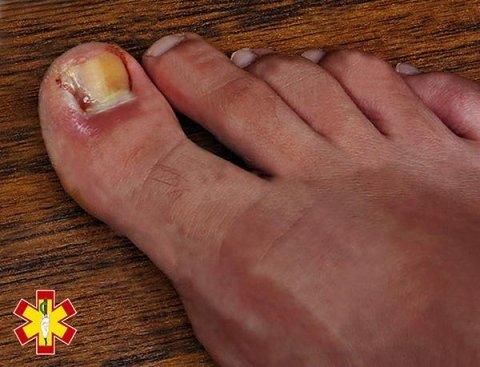unghia del pollice incarnita