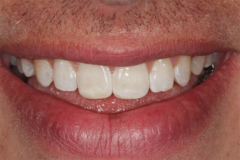 Teeth spacing corrected