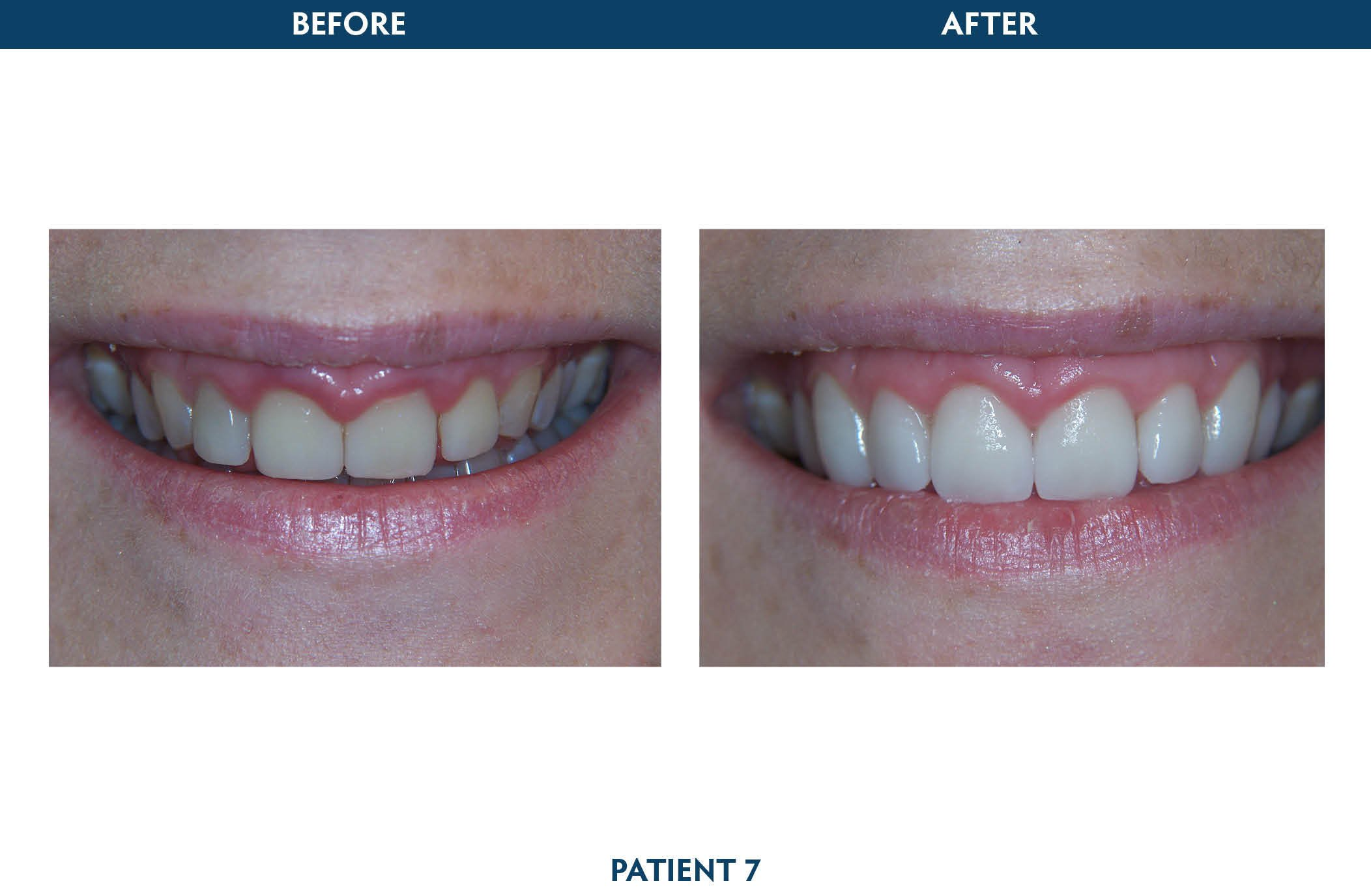 dental implants scarsdale, ny