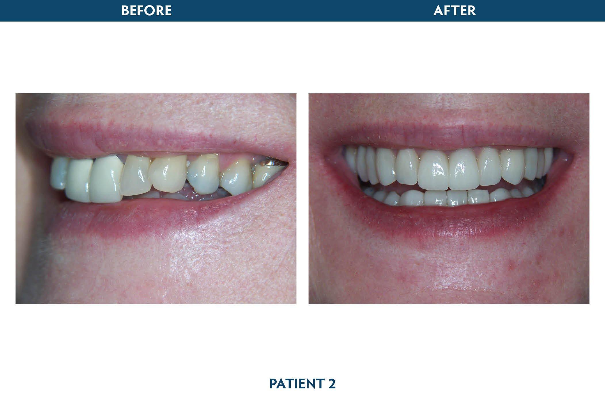 sedation dentistry white plains, ny