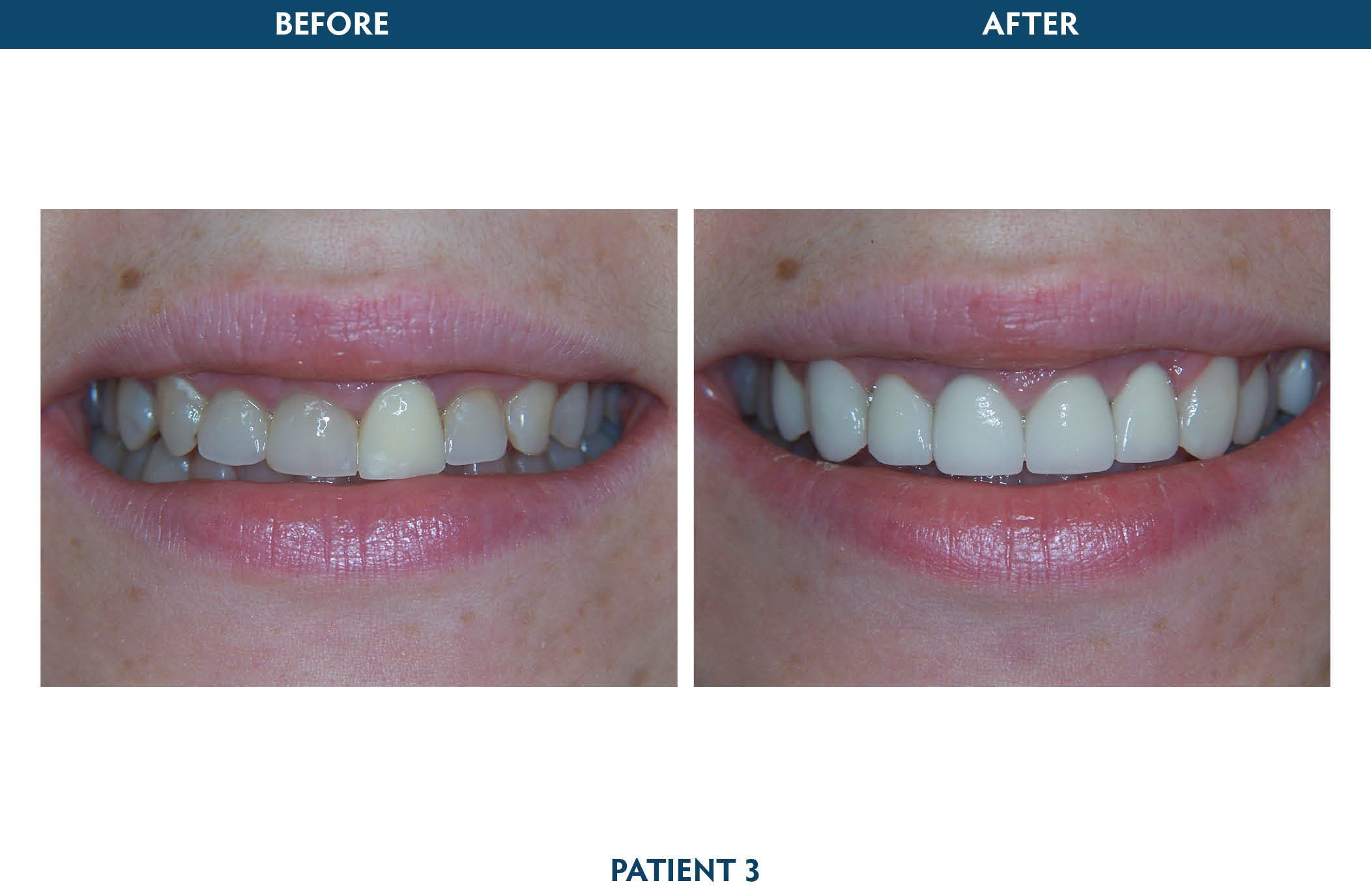 restorative dentistry white plains, ny