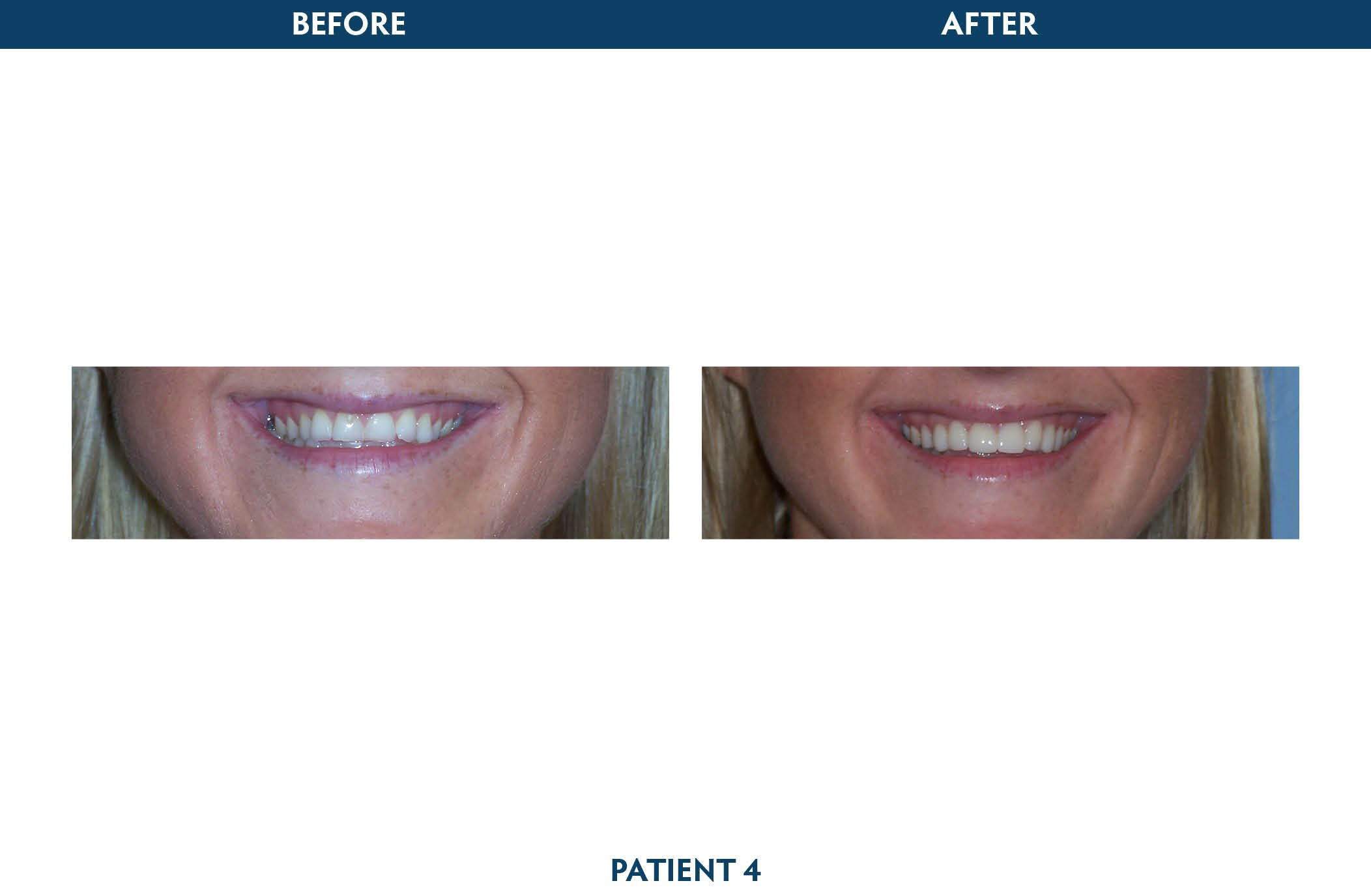 dental implants white plains, ny