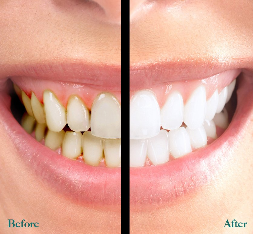 teeth whitening scarsdale, ny