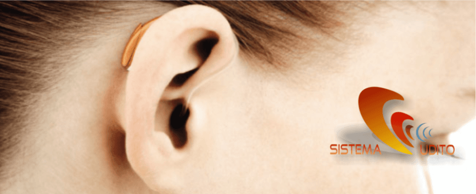 protesi acustiche