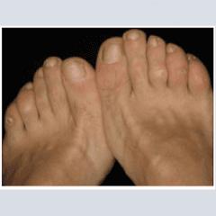 Le patologie del piede che curiamo