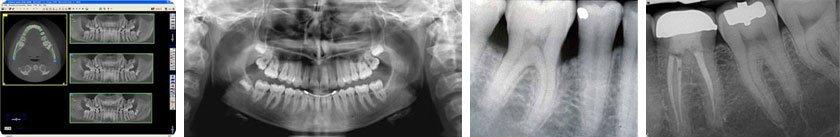 radiologia orale