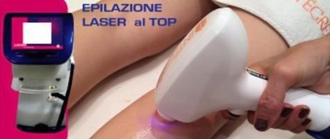 Epilazione Laser al top