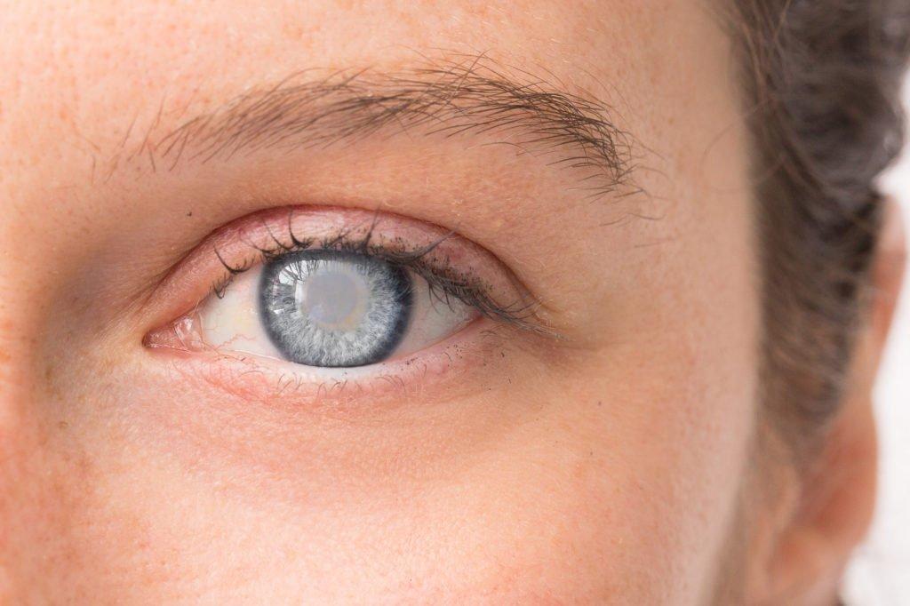 Todo lo que necesitas saber sobre las cataratas en los ojos